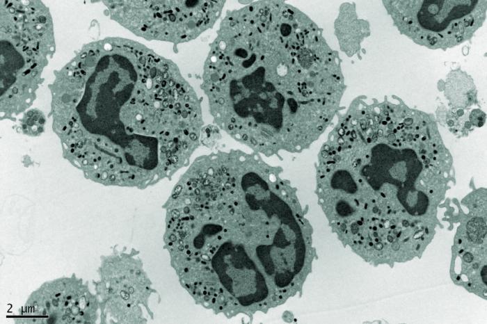 Neutropenia: Causes, diagnosis, and treatment