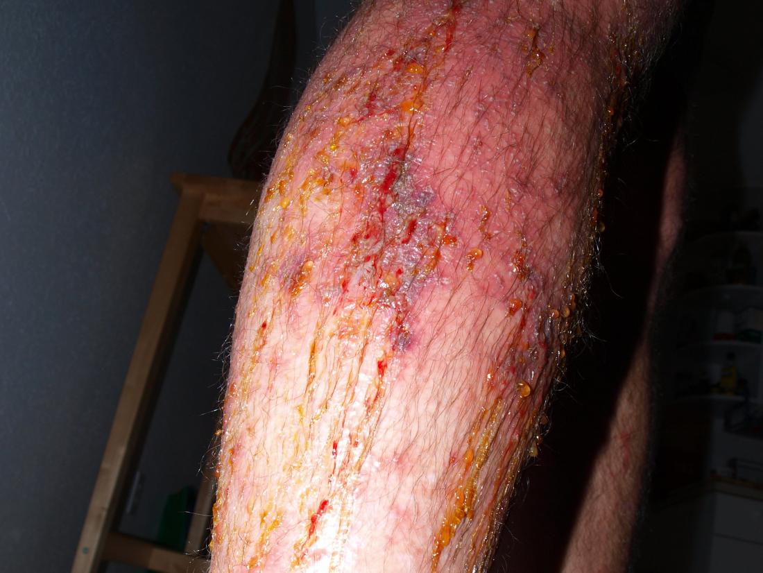 Poison Ivy Rash Causes Treatment And