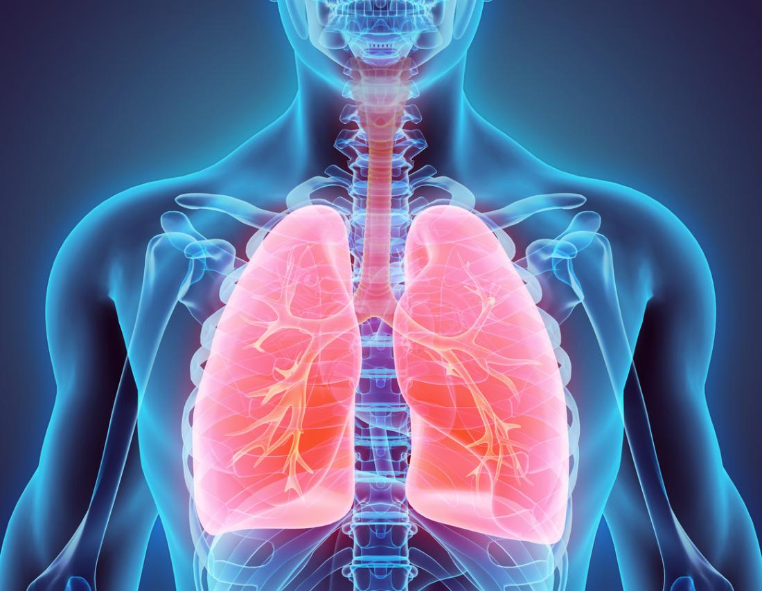 Acute respiratory distress syndrome: What you need to know