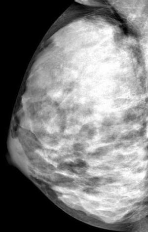 Extremely dense breast tissue
