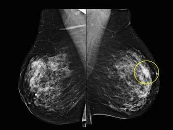 Bilateral Mammogram MLO images