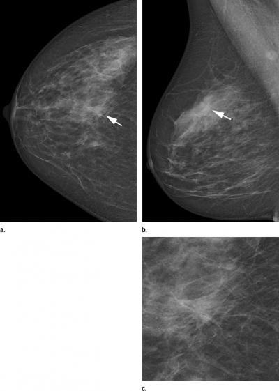 Two-view screening mammograms obtained with the DR photon-counting system