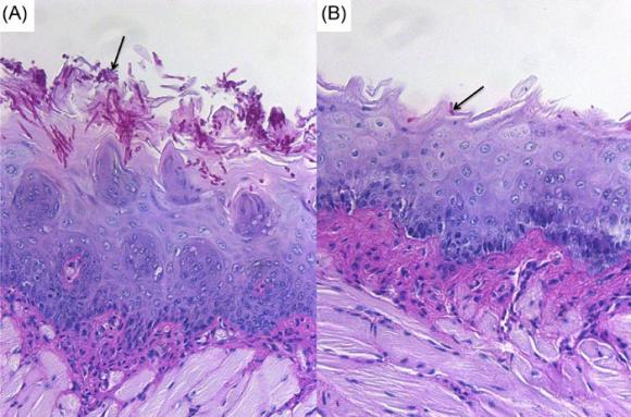 Tissue Invasion by Candida