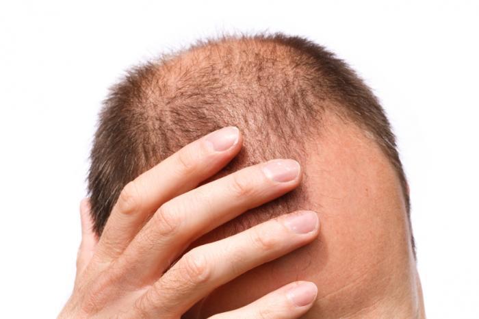 [balding man]