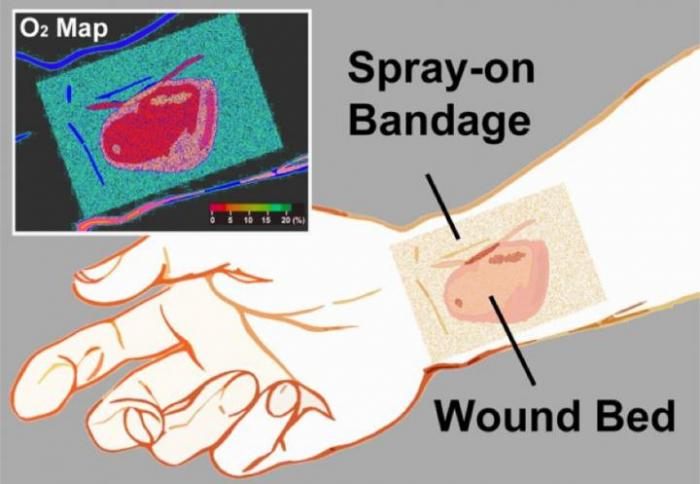 'Smart' Bandage Shows Tissue Oxygen Levels