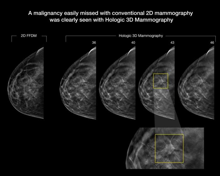 [Mammography Comparison]