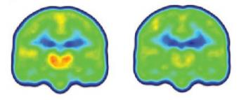 Images Reveal Neuroinflammation in Chronic Pain Patients