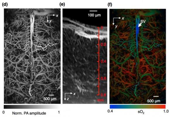 Fast Functional Photoacoustic Microscopy