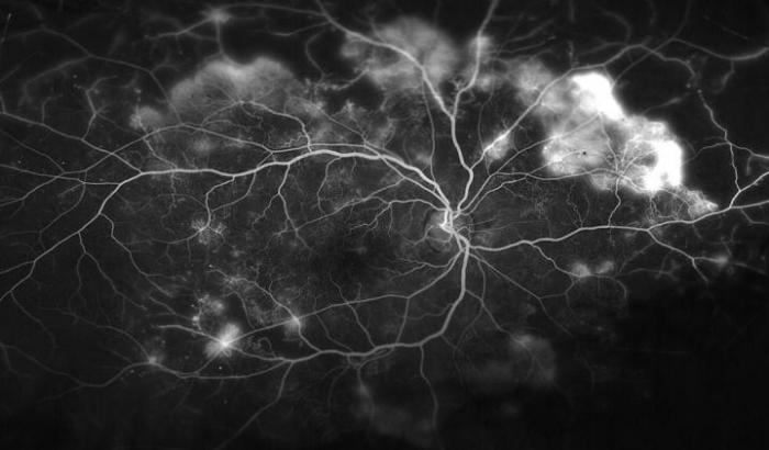 Blood Vessels in the Retina