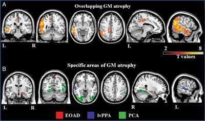 patterns of cortical atrophy