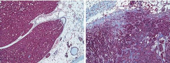 A Tale of 2 Tumor Environments