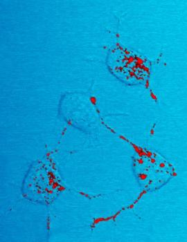 Prion Trafficking: Scrapie Mouse