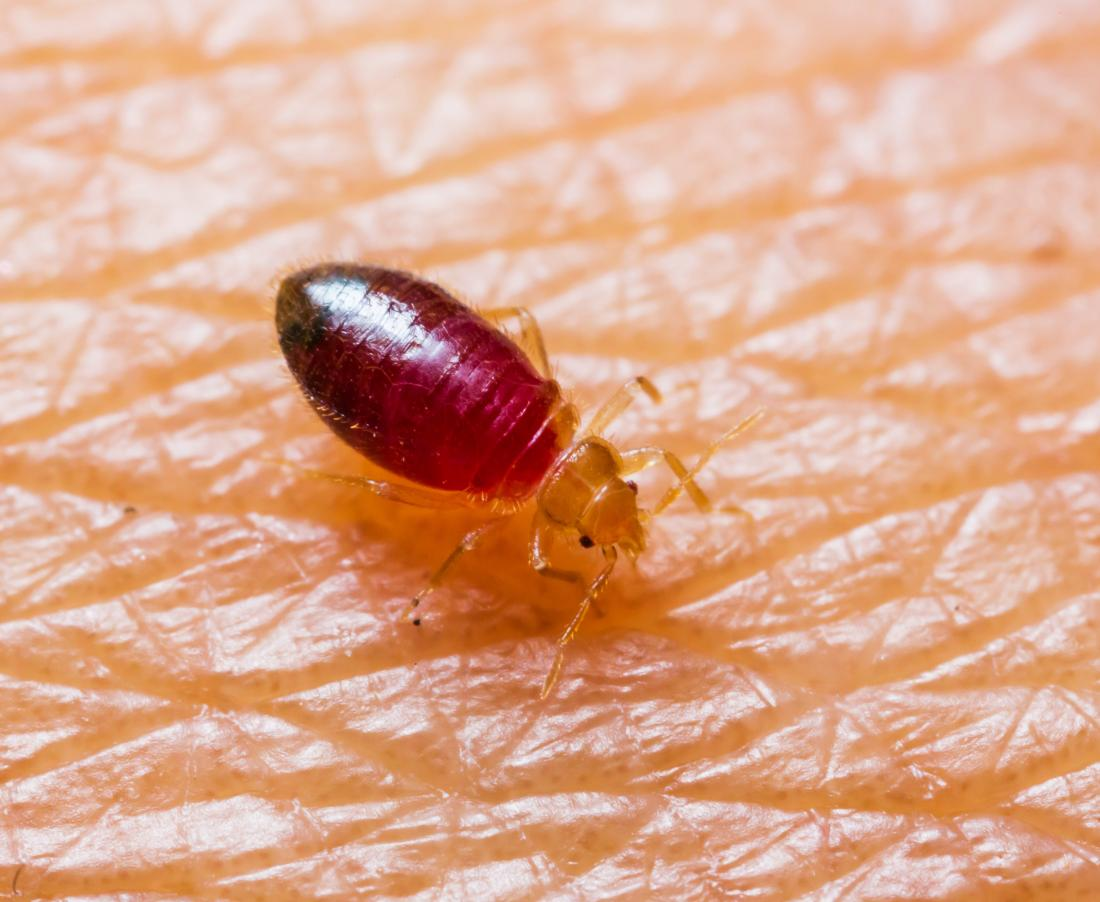 Getting Rid Of Bed Bugs Natural Measures Chemicals And Pest Control