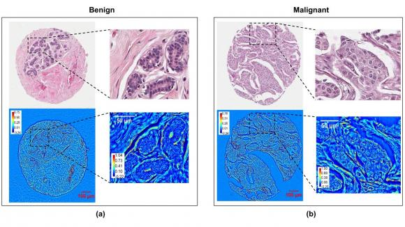 Comparison of Stained and Unstained Images in Breast Cancer Diagnosis