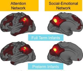 Brains of Preemies Have Weakened Connections