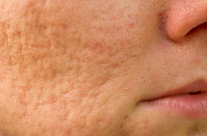 Acne: what causes it and how to relieve it