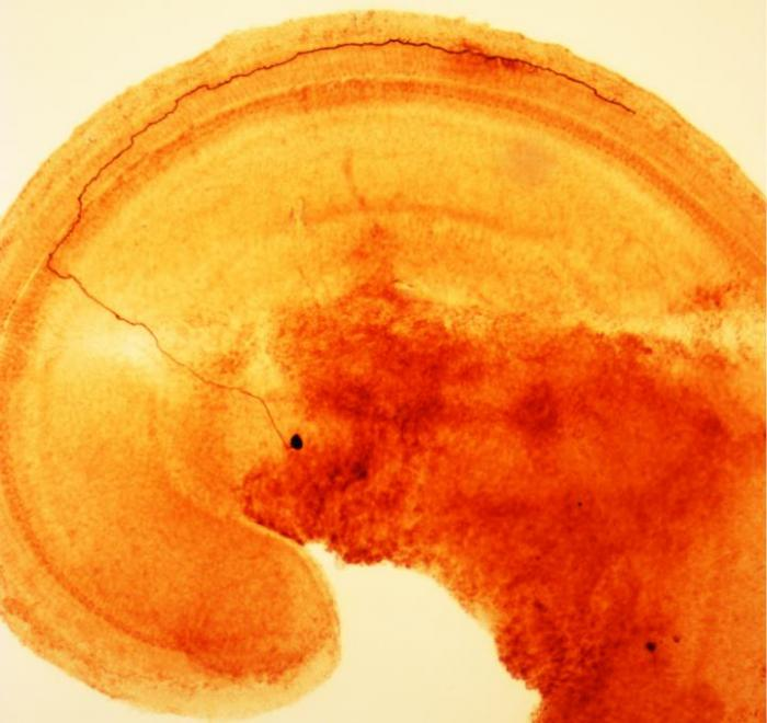 Inner Ear Nerve Cells Warn Brain of Damage