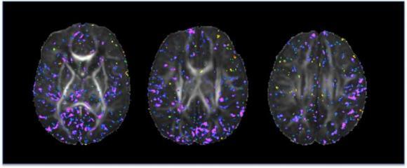 Newborn Brain Images