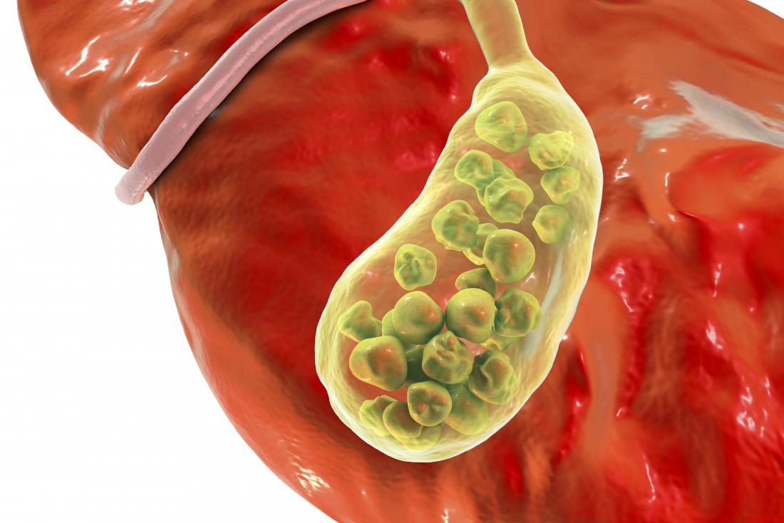 Gallbladder inflammation symptoms: Signs, complications, and