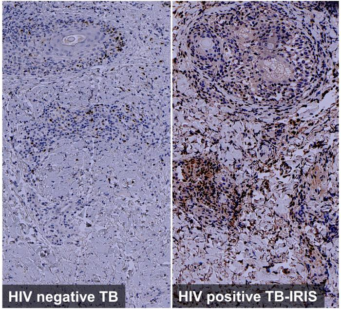 Exaggerated IRF4 expression associated with Th2 immunity in tuberculin skin tests of HIV infected TB-IRIS patient]