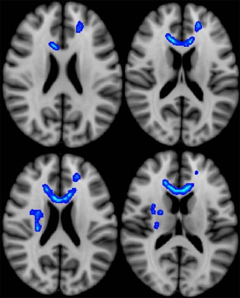 Imaging Predicts Long-Term Effects in Veterans with Brain Injury