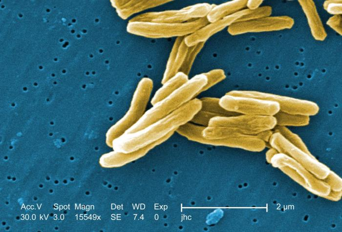 TB-Causing Bacteria