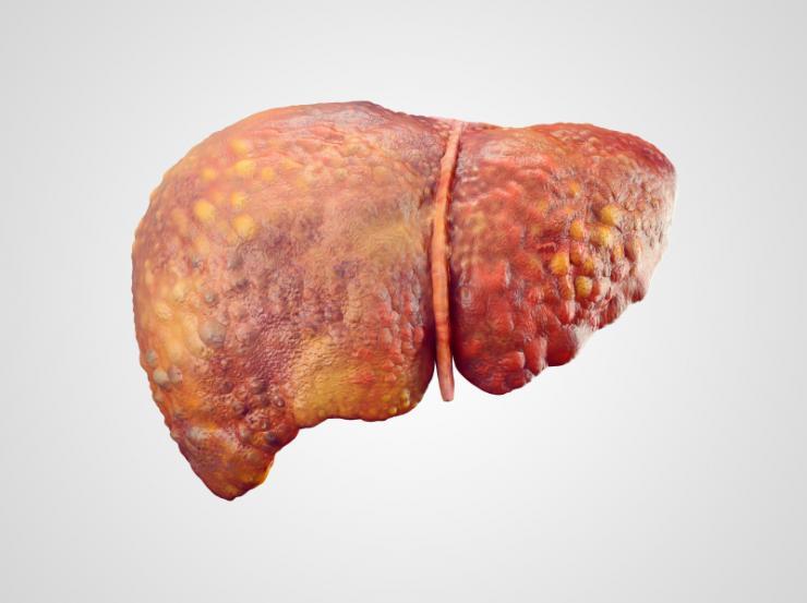 Cancerul de ficat – Spitalul Universitar de Urgenţă Militar Central Dr. Carol Davila