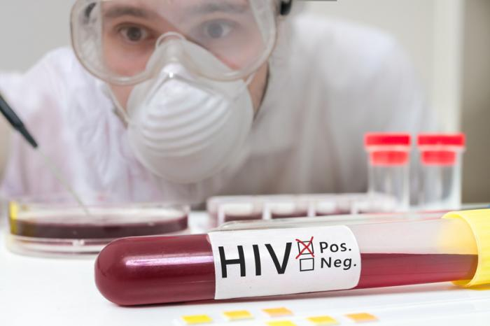 HIV: Transmission, symptoms, and treatment