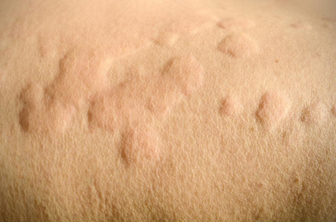 Itchy skin (pruritus): Causes, treatment, and home remedies