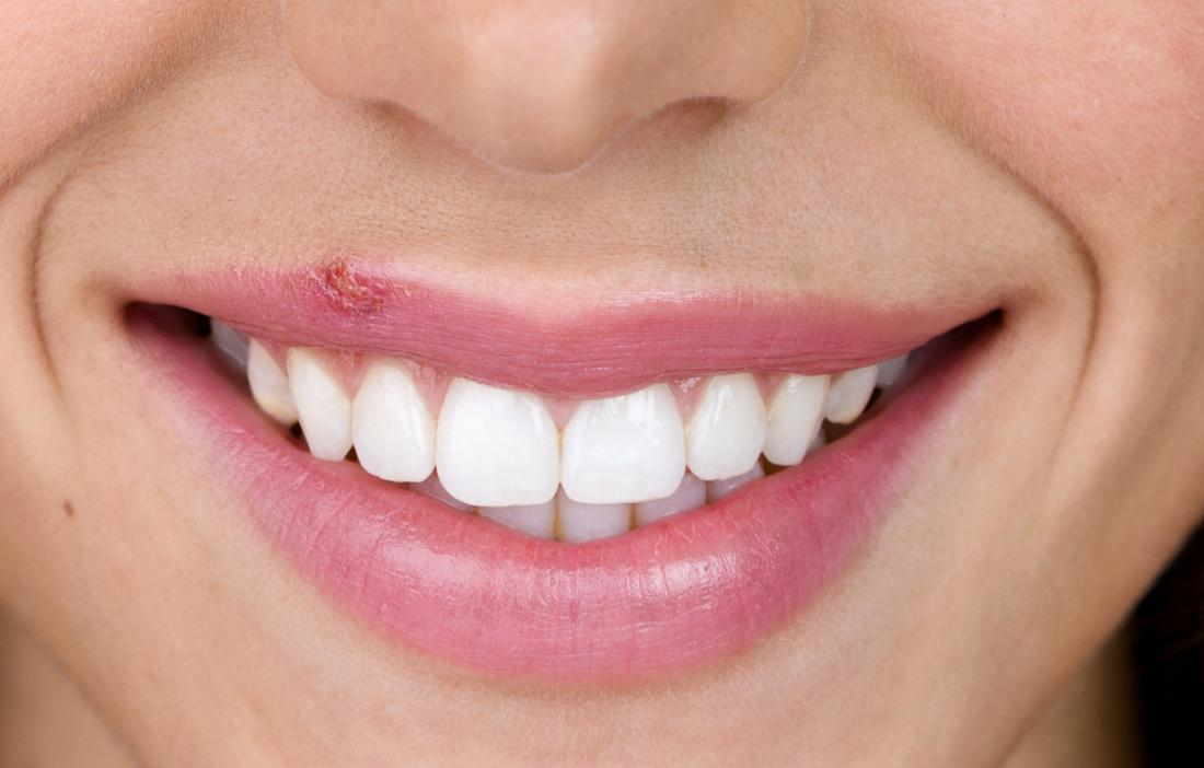 Cold sores: Home remedies and other treatment