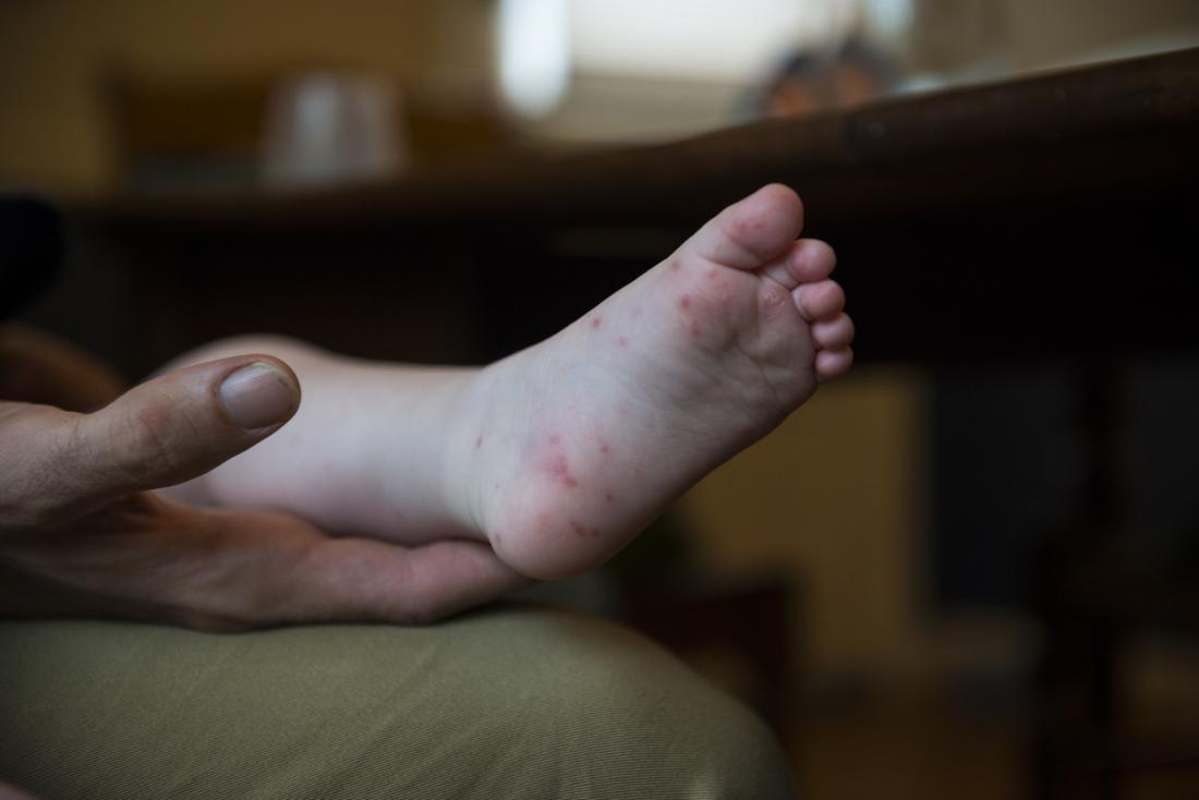 Hand, foot, and mouth disease: Symptoms, causes, and treatment