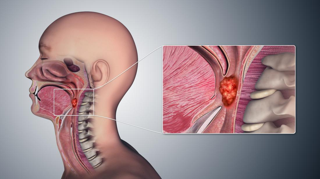 Throat cancer: Symptoms, pictures, causes, and treatment