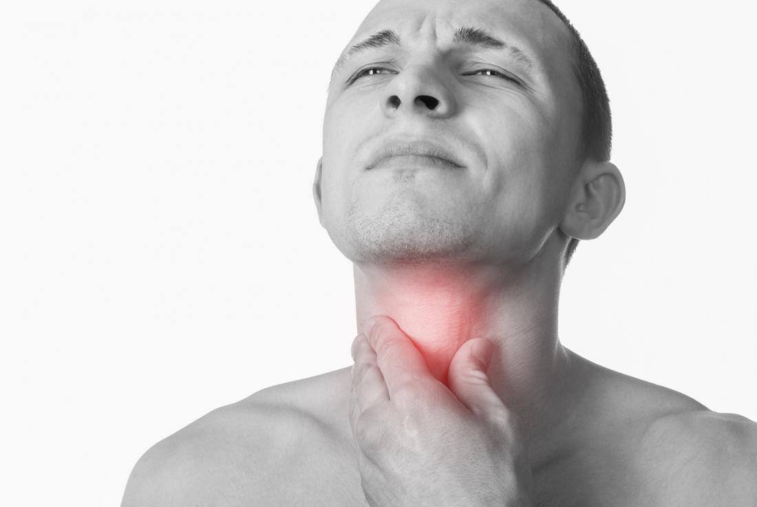 Throat cancer: Symptoms, causes, and treatment