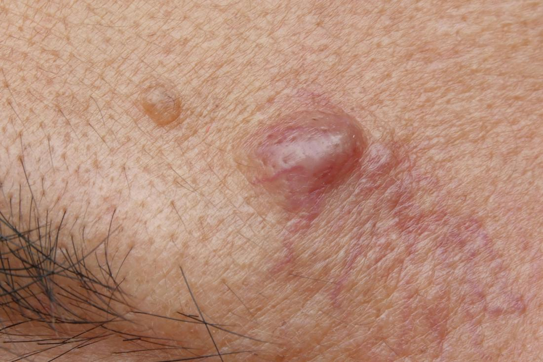 Sebaceous cyst: Removal, infections, and treatment