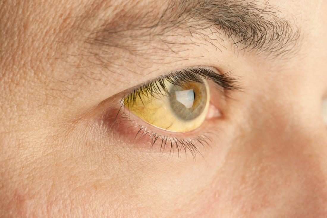 Yellow eyes: Causes in newborns, children, and adults