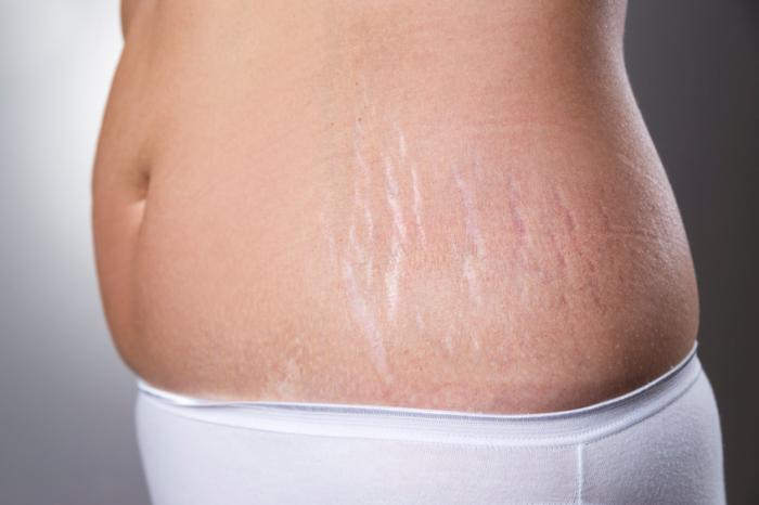 Stretch mark removal: Treatments and home remedies