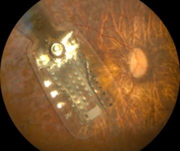 Fundus of the patient's eye implanted with Argus II Retinal 98 Prosthesis