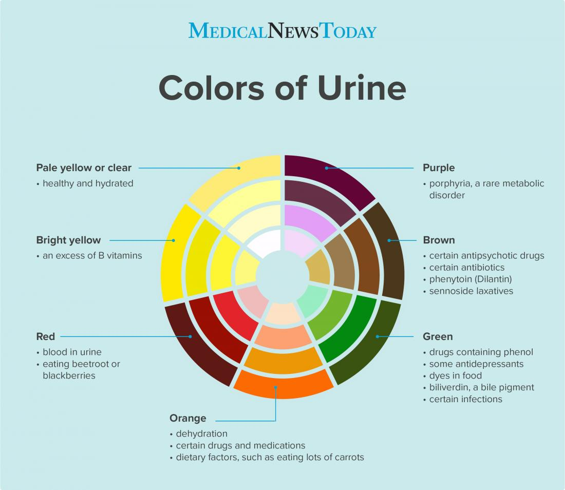 Urine colors infographic