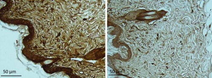 Image showing Huntingtin aggregates are elevated in skin sections from HD model mice