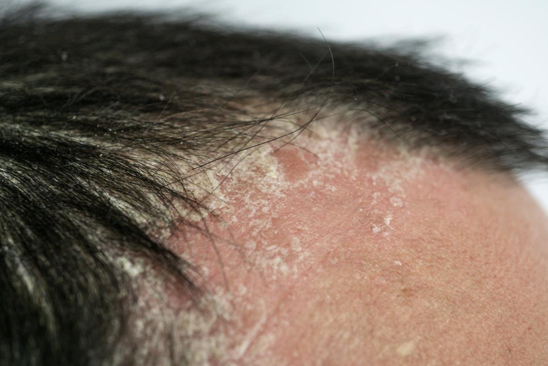 Psoriasis and hair loss: Scalp psoriasis, symptoms, prevention