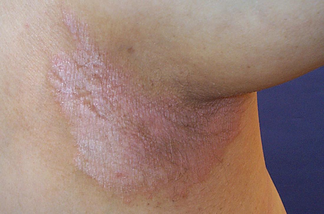 Invers psoriasis