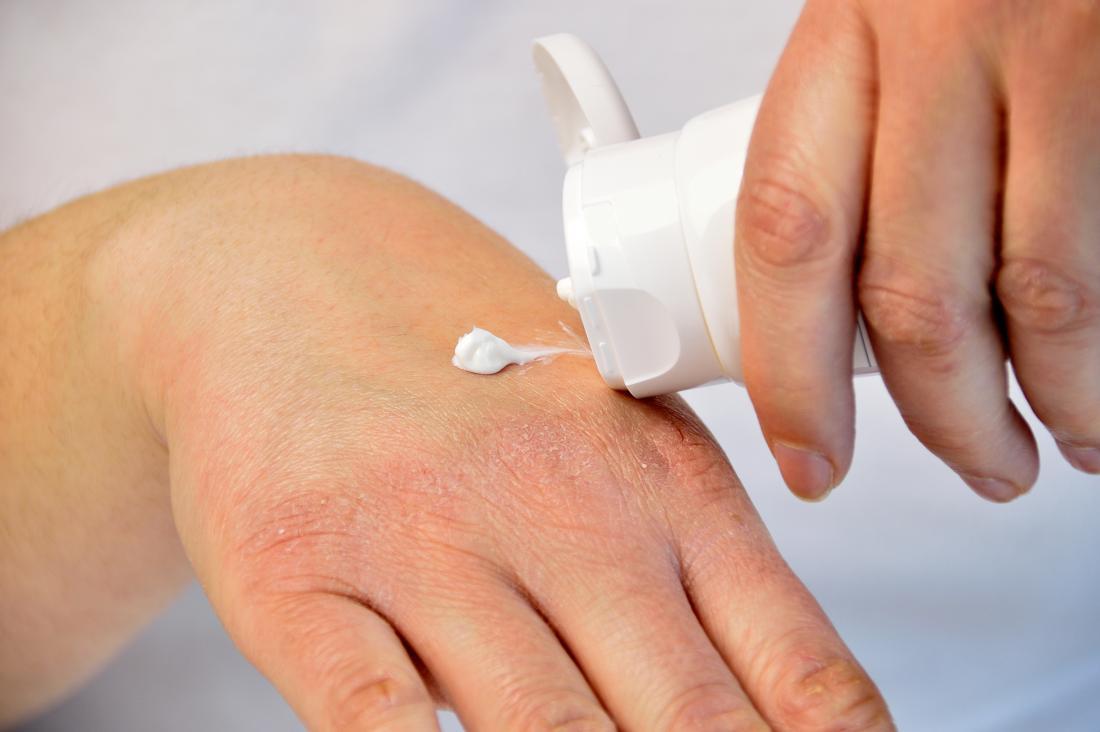 bloodletting psoriasis kezelése nagy piros folt a bőr fotóján
