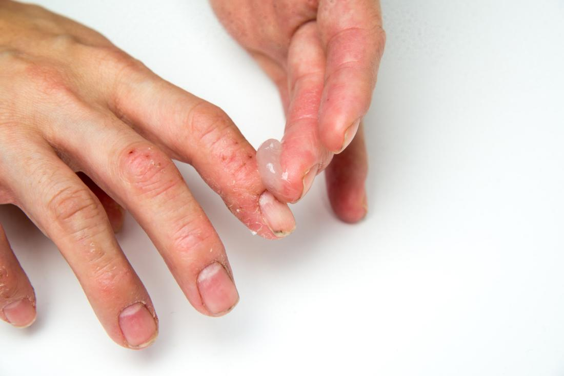 Nail Psoriasis What Is It Treatment
