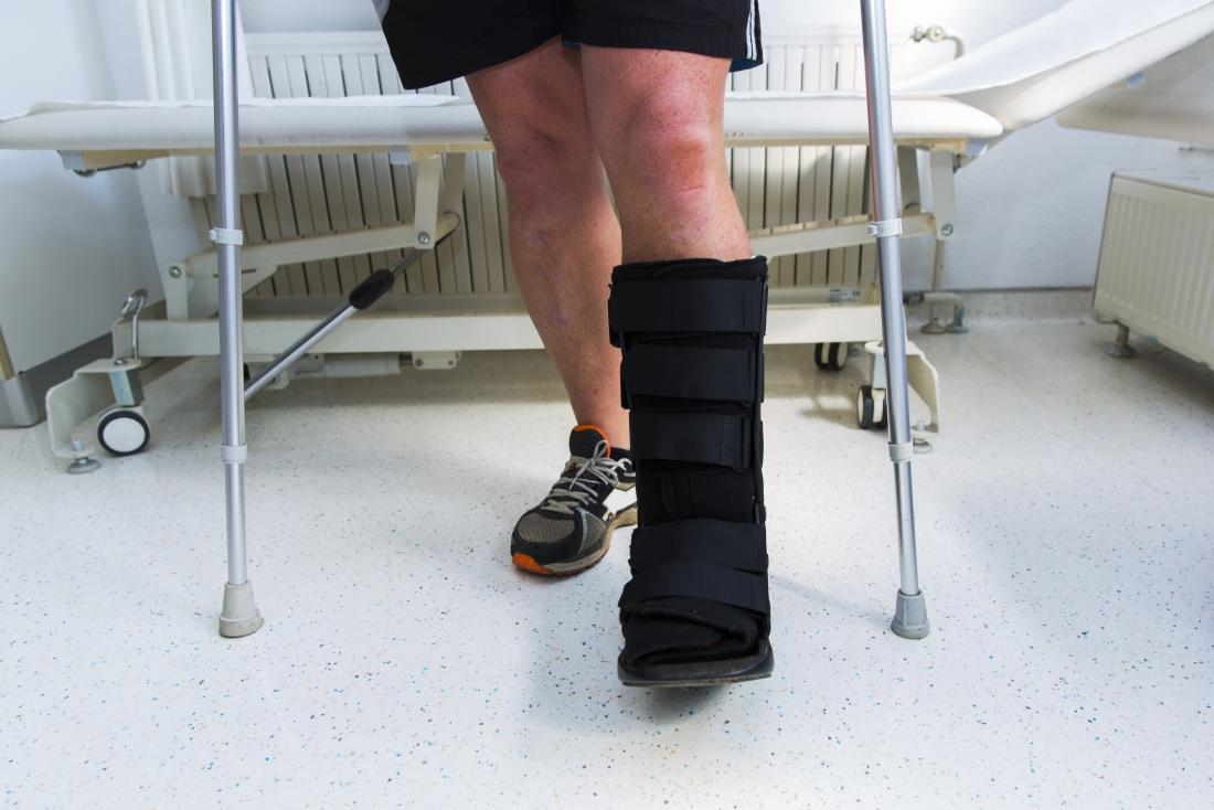 Jones fracture: Causes, symptoms, and treatment