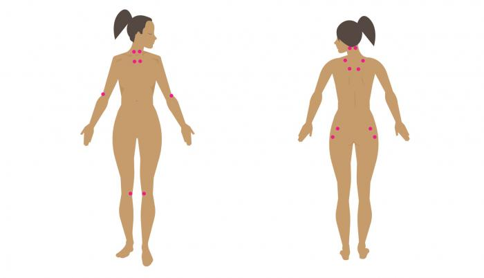 Fibromyalgia tender points: Locations and pain management
