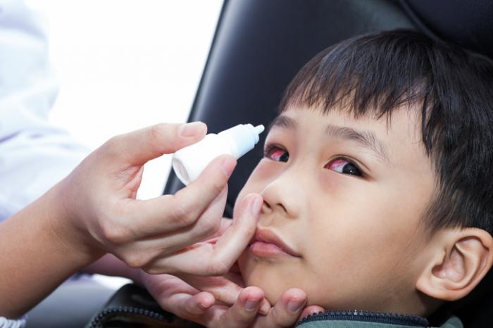 Red eyes: Treatment, types of eyedrop, and causes