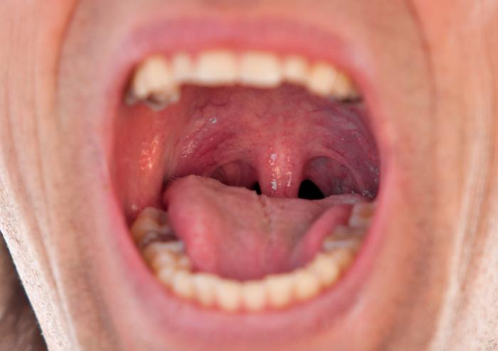 Swollen uvula: Causes, symptoms, and remedies