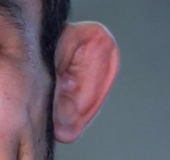 Cauliflower ear: Causes, symptoms, and treatments