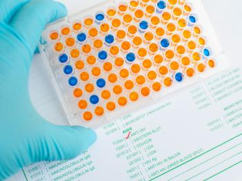 Western blot and ELISA tests for HIV: What to expect