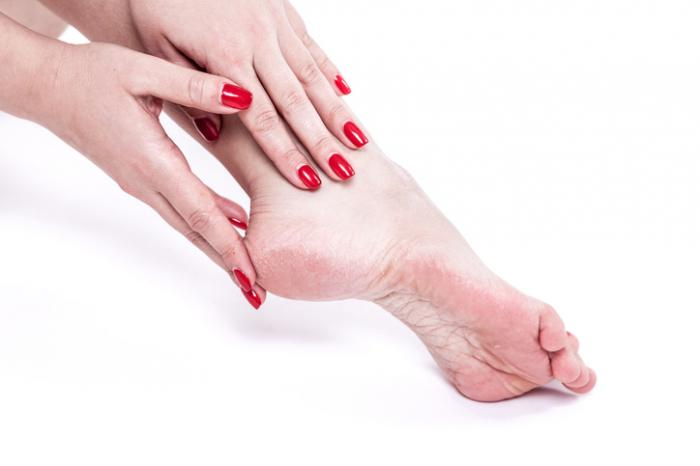 home cures for cracked feet